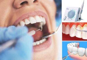 Cạo vôi răng như thế nào 4