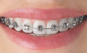 niềng răng trong bao lâu để đẹp nhất 2
