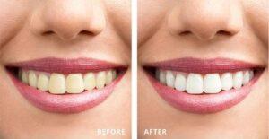 Tẩy trắng răng giá bao nhiêu tiền 3