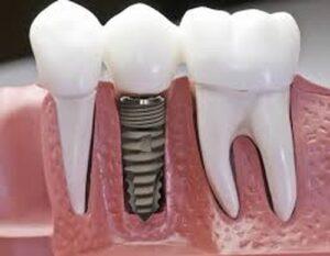 Trồng răng sứ có tốt không 3